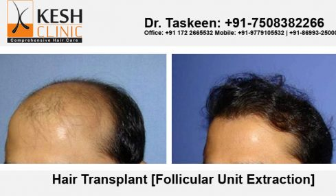 Hair Transplant- The Ultimate Solution Of Baldness