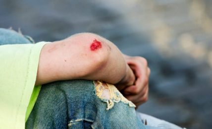 5 Reasons Why You Should Seek Accident At Work Compensation