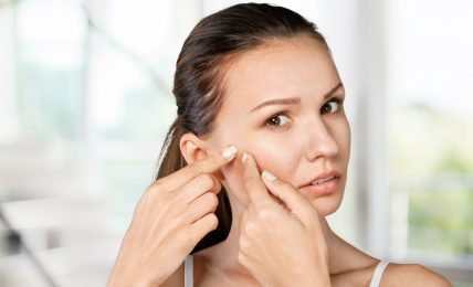 Acne Treatments For Adults – Understand The Essentials
