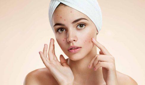 acne-problem