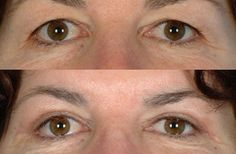 Cosmetic Surgery Eastern Suburbs In Sydney For Visual Improvement And Comfort