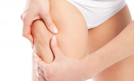 Remove The Unwanted Fat On Lower Body In Few Days