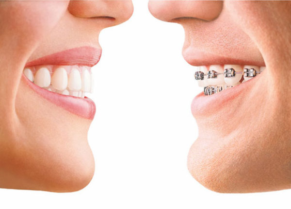 Different Types Of Dental Braces