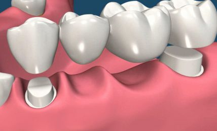 Top 5 Benefits Of Dental Bridges