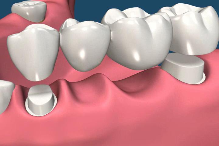 Top 5 Benefits Of Dental Bridges