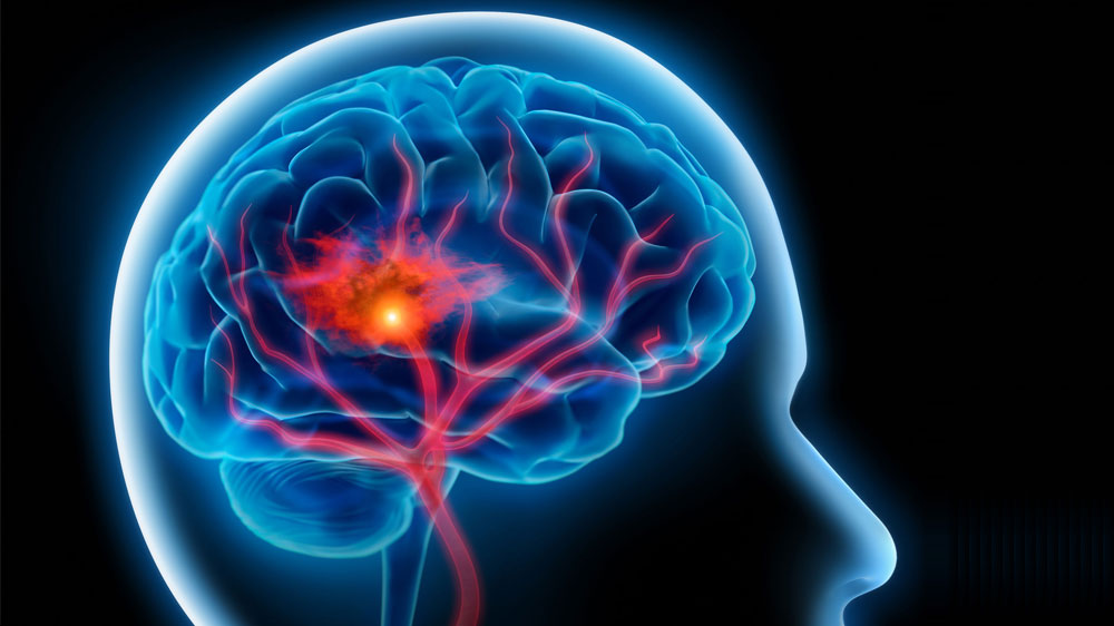 A Complete Guide On Brain Stroke and Its Symptoms