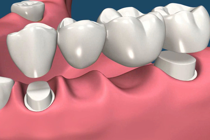 Crowns and Bridges- Restructure and Restore Your Smile