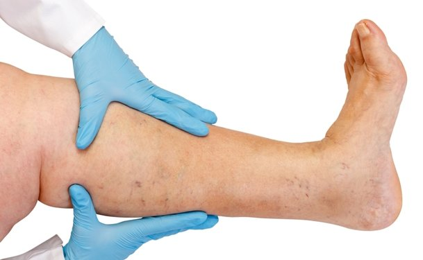 Venous Leg Ulcer And Its Treatment