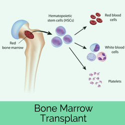 Everything You Need To Know About Your Bone Marrow Transplantation